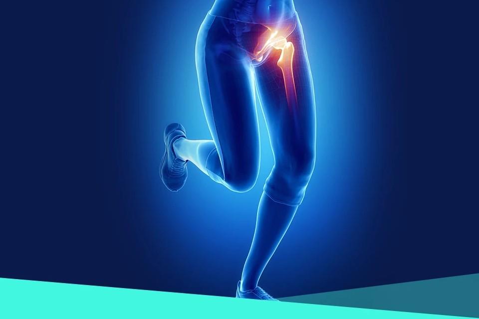 Deformarea artrozei în 2-3 grade de tratament,