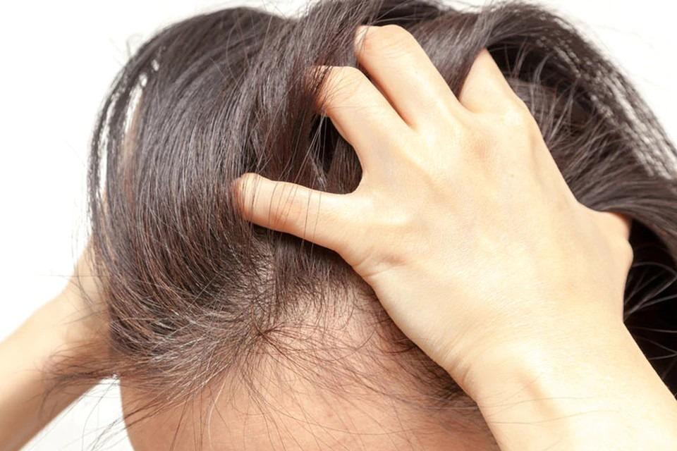 Tratament naturist psoriazis scalp