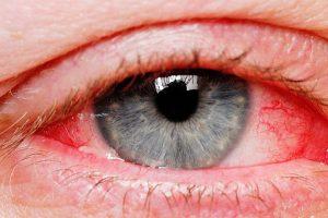 Ai ochii roșii?